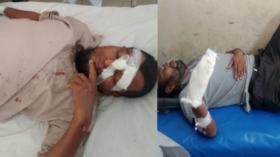 কলাপাড়ায় মোটরসাইকেল দুর্ঘটনায় প্রধান শিক্ষকসহ আহত-২